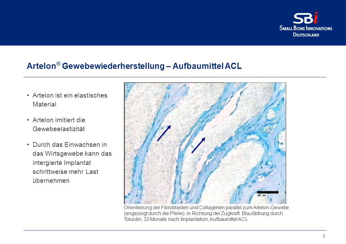 Artelon ® Gewebeverstärkung