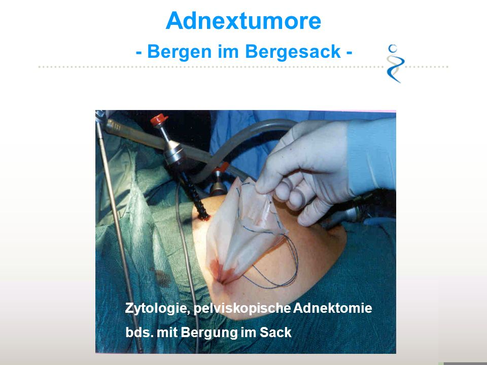Adnextumore - Bergen im Bergesack -
