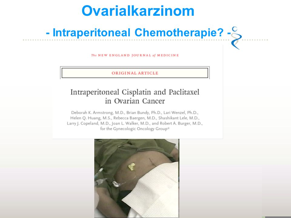 - Intraperitoneal Chemotherapie -