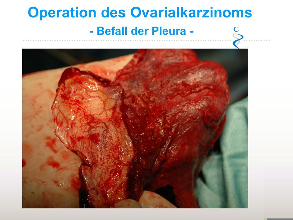 Operation des Ovarialkarzinoms - Befall der Pleura -