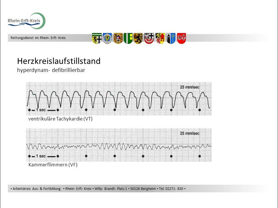 Herzkreislaufstillstand