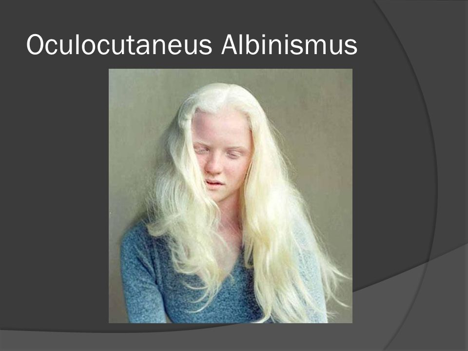 Oculocutaneus Albinismus