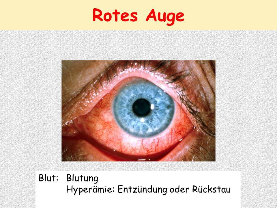 Blut: Blutung Hyperämie: Entzündung oder Rückstau