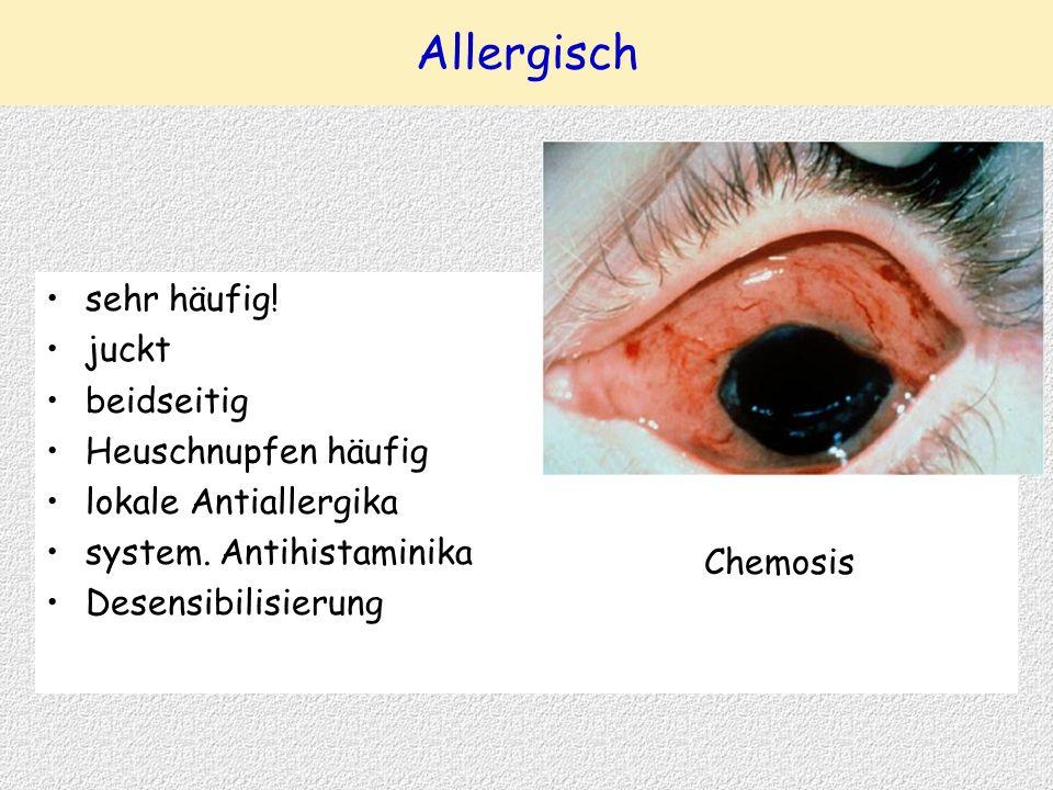 Allergisch sehr häufig! juckt beidseitig Heuschnupfen häufig