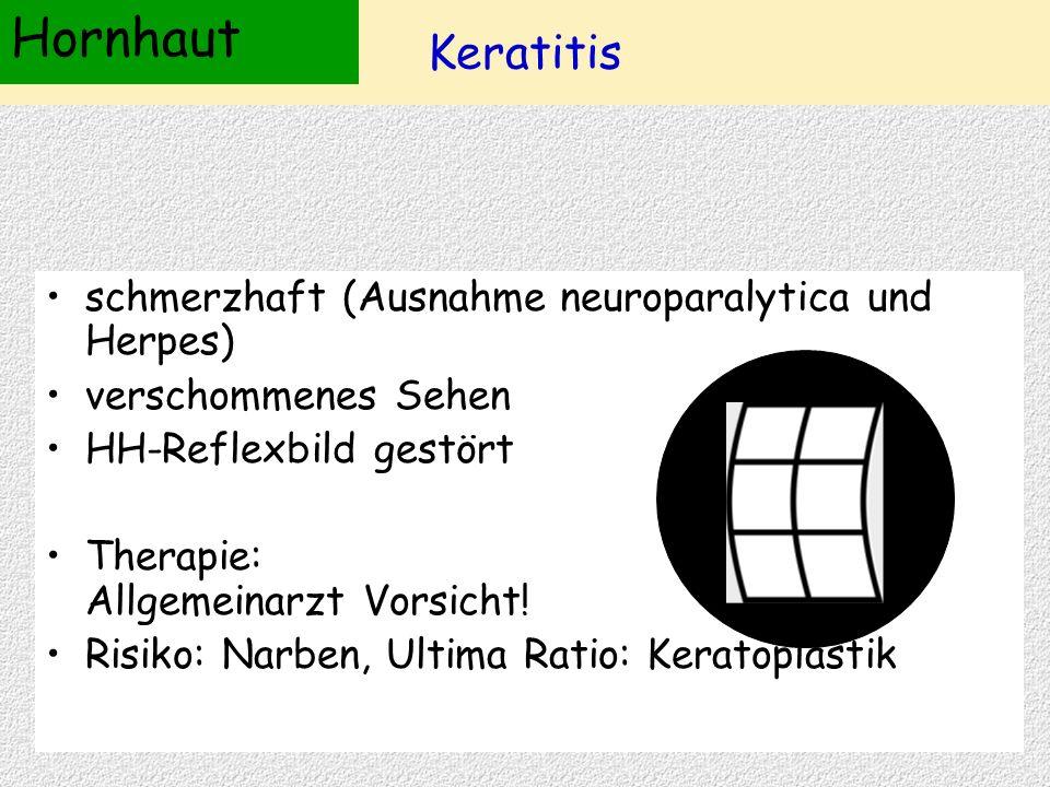 Hornhaut Keratitis schmerzhaft (Ausnahme neuroparalytica und Herpes)
