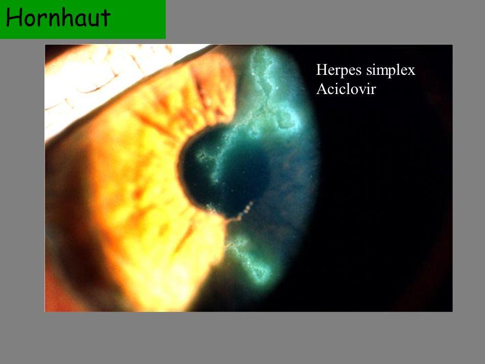 Hornhaut Herpes simplex Aciclovir