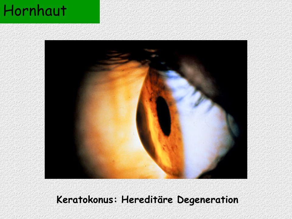 Hornhaut Keratokonus: Hereditäre Degeneration