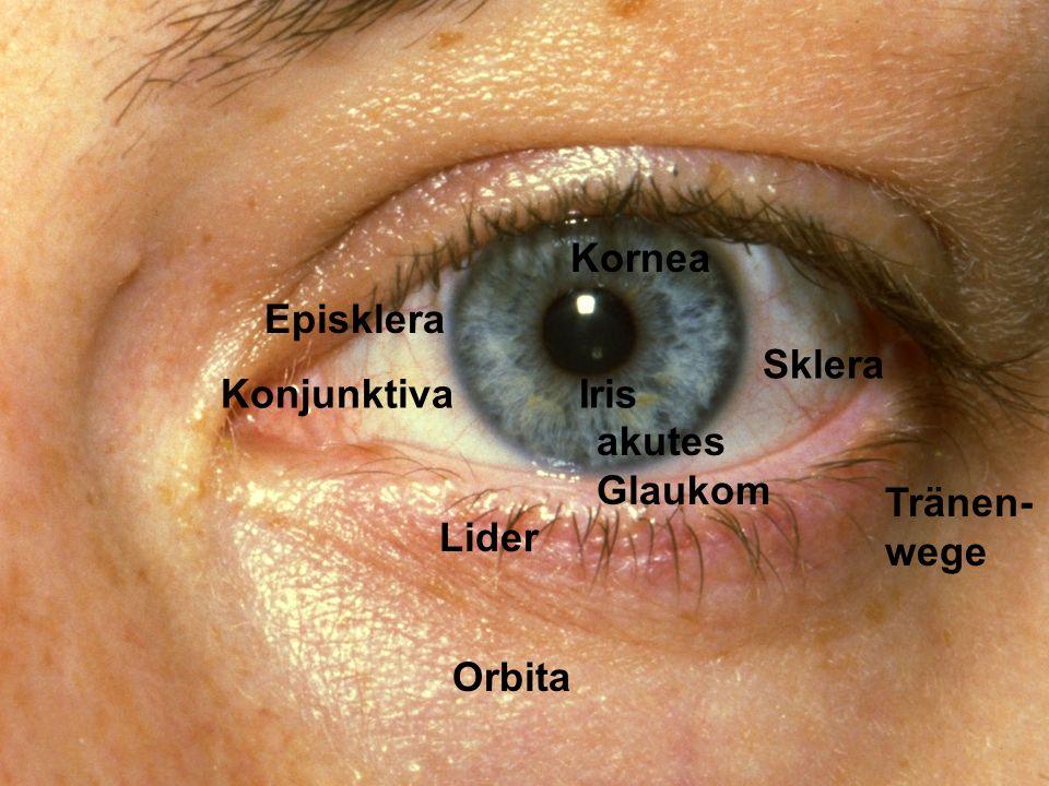 Kornea Episklera Sklera Konjunktiva Iris akutes Glaukom Tränen-wege Lider Orbita