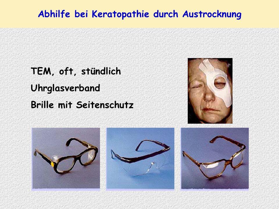 Abhilfe bei Keratopathie durch Austrocknung