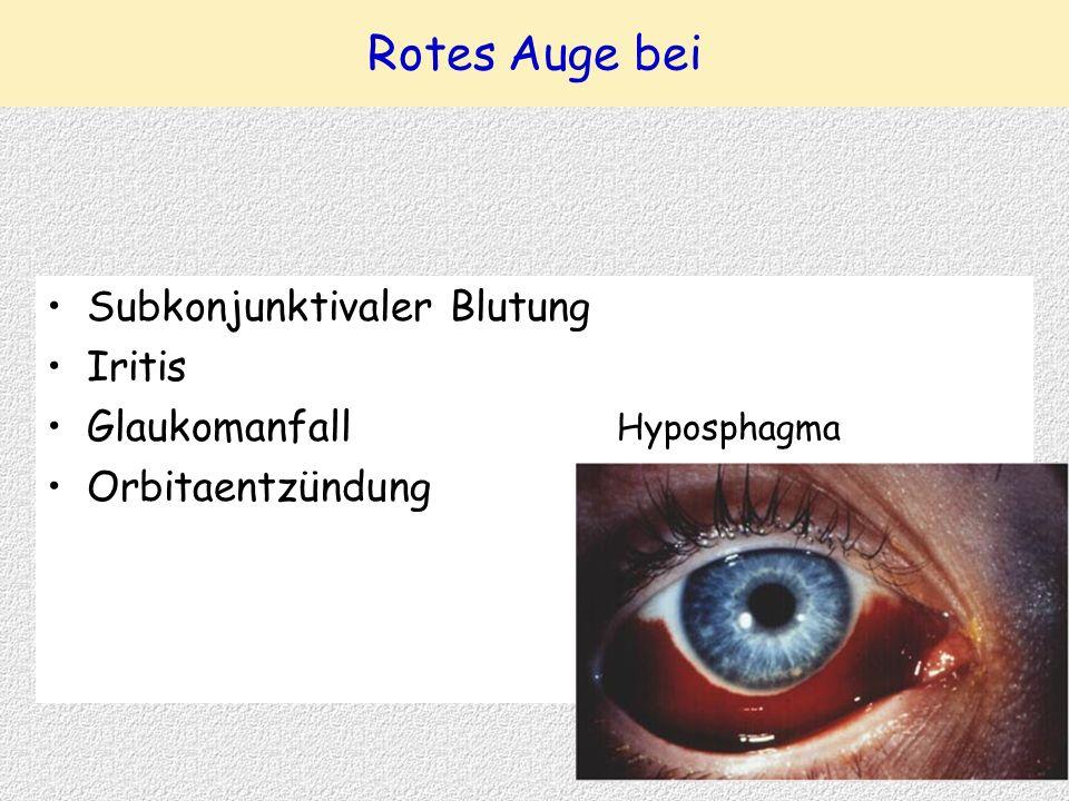 Rotes Auge bei Subkonjunktivaler Blutung Iritis Glaukomanfall