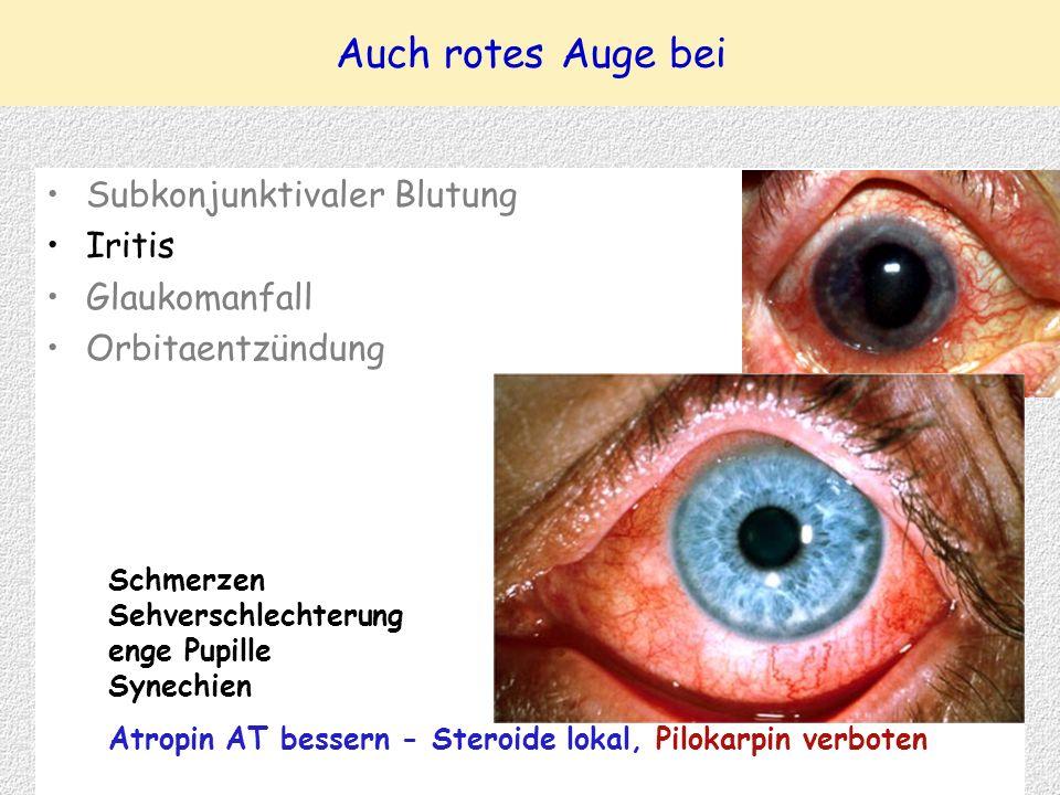 Auch rotes Auge bei Subkonjunktivaler Blutung Iritis Glaukomanfall