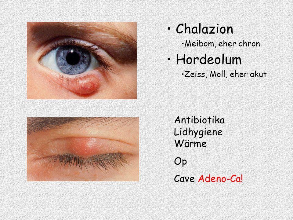 Chalazion Hordeolum Antibiotika Lidhygiene Wärme Op Cave Adeno-Ca!