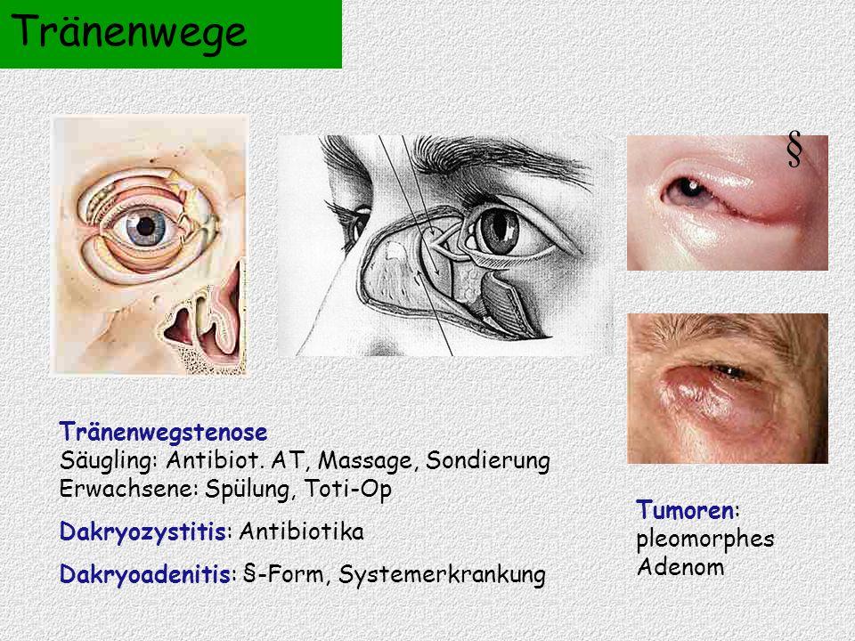 Tränenwege § Tränenwegstenose Säugling: Antibiot. AT, Massage, Sondierung Erwachsene: Spülung, Toti-Op.