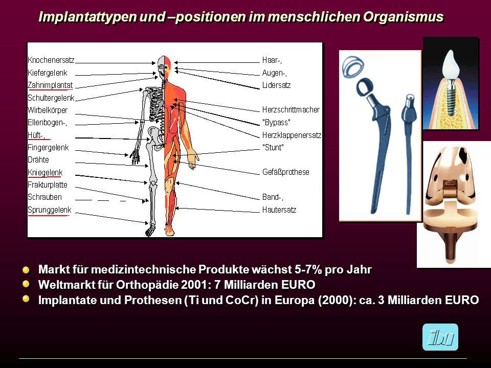 Implantattypen und –positionen im menschlichen Organismus