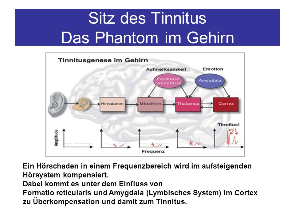 Sitz des Tinnitus Das Phantom im Gehirn