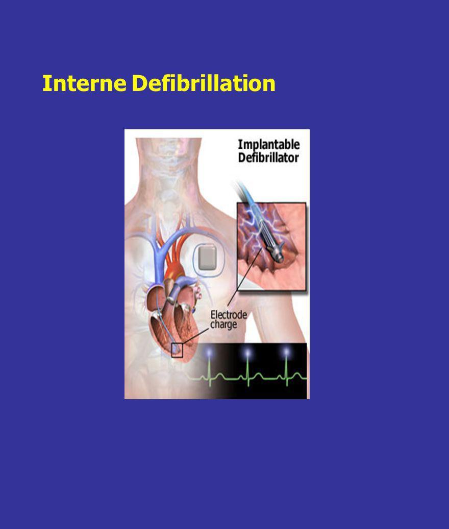 Interne Defibrillation