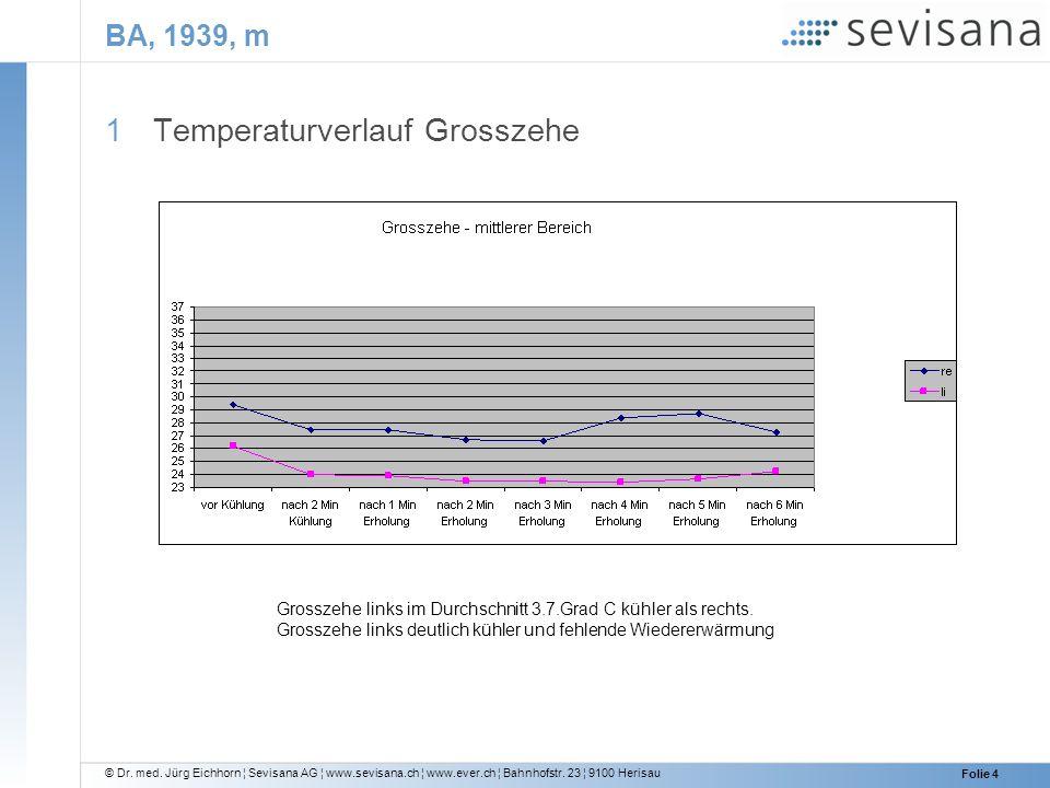 Temperaturverlauf Grosszehe
