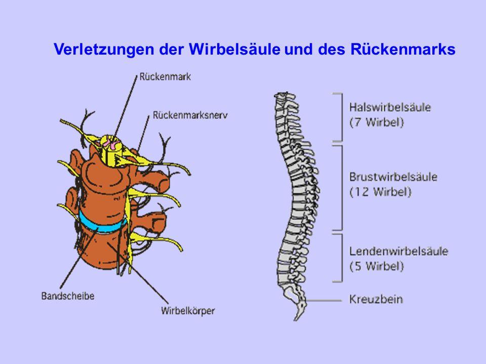Verletzungen der Wirbelsäule und des Rückenmarks
