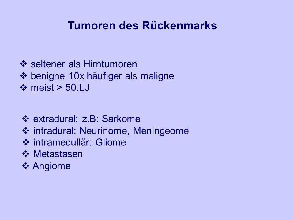 Tumoren des Rückenmarks