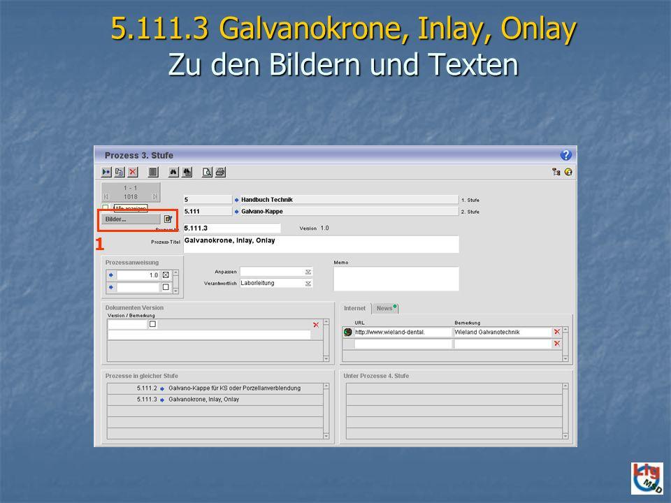 5.111.3 Galvanokrone, Inlay, Onlay Zu den Bildern und Texten