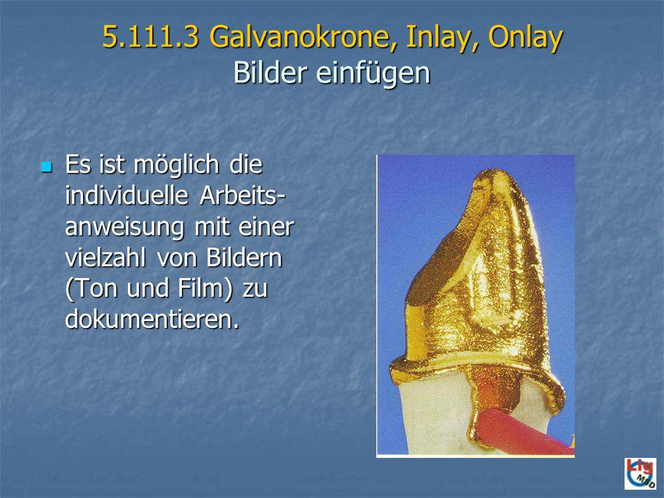 5.111.3 Galvanokrone, Inlay, Onlay Bilder einfügen