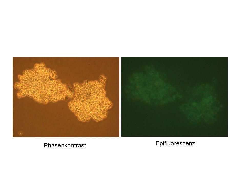 Epifluoreszenz Phasenkontrast