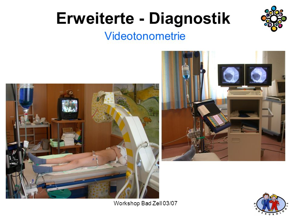 Erweiterte - Diagnostik Videotonometrie