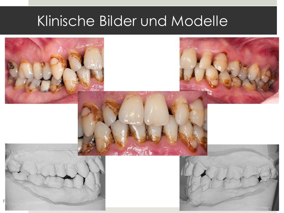 Klinische Bilder und Modelle