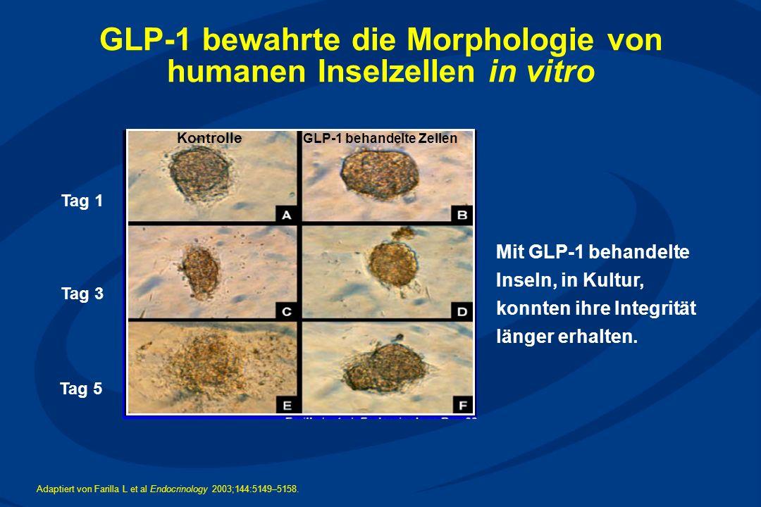GLP-1 bewahrte die Morphologie von humanen Inselzellen in vitro
