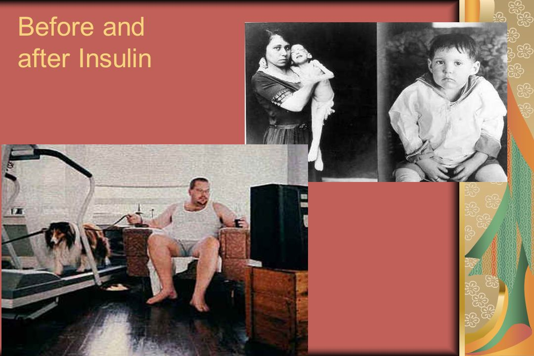 Before and after Insulin