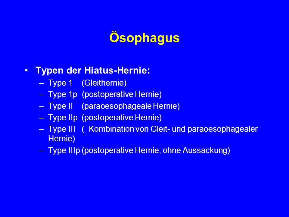 Ösophagus Typen der Hiatus-Hernie: Type 1 (Gleithernie)