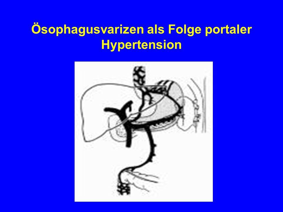Ösophagusvarizen als Folge portaler Hypertension