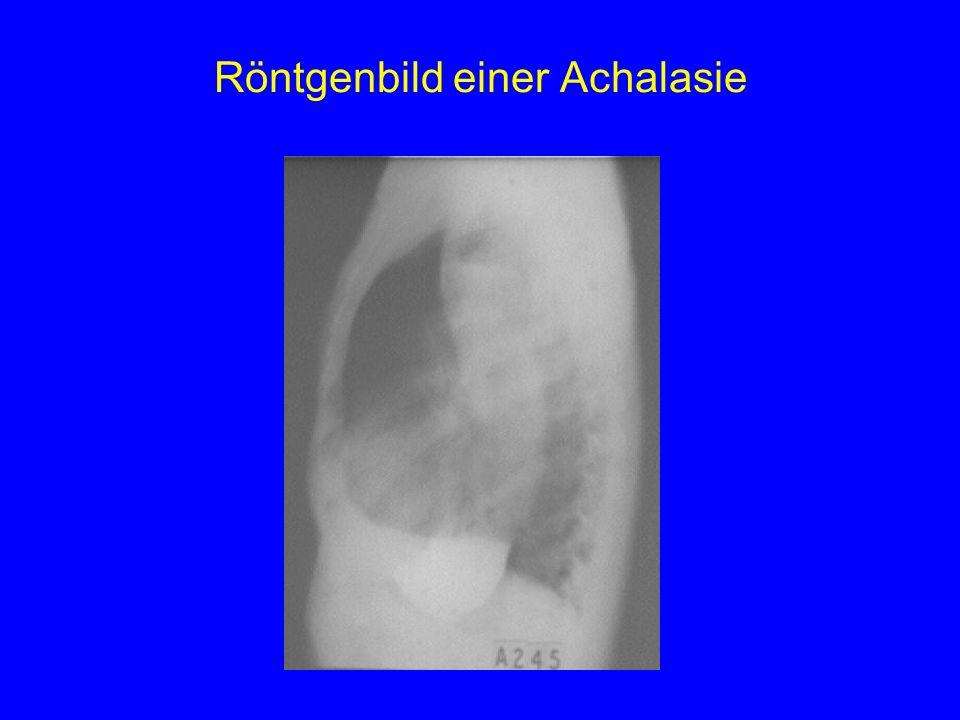 Röntgenbild einer Achalasie