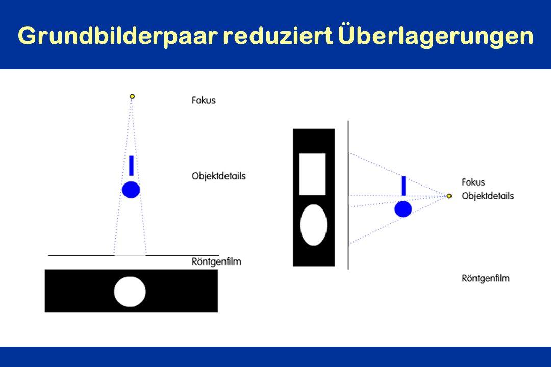 Grundbilderpaar reduziert Überlagerungen