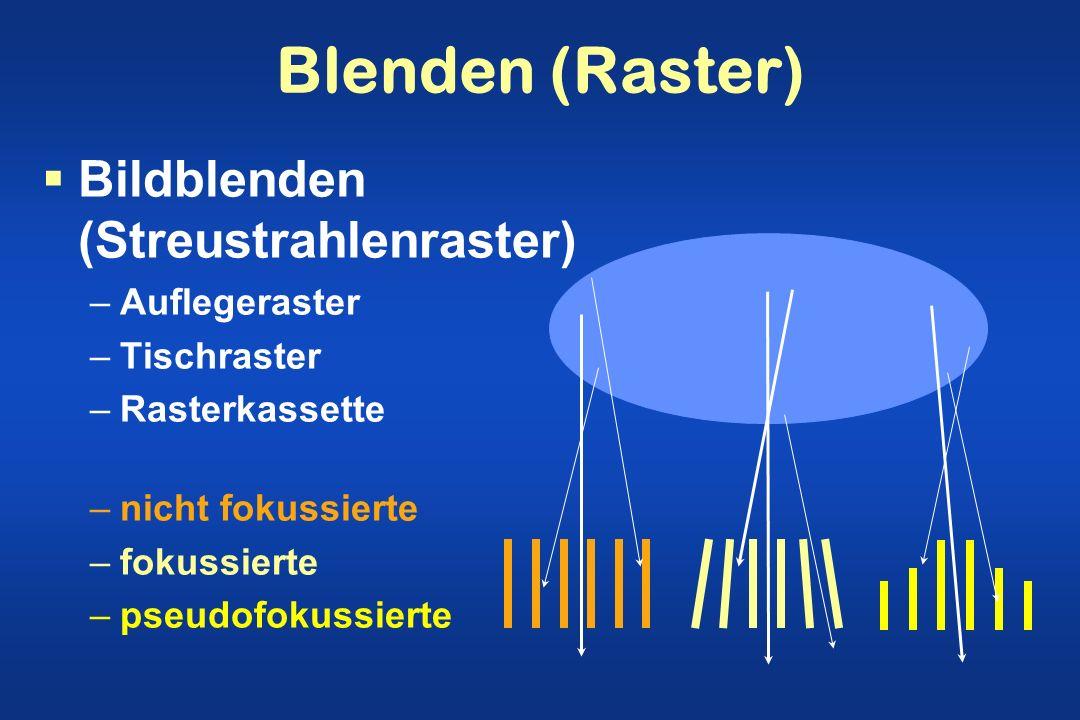 Blenden (Raster) Bildblenden (Streustrahlenraster) Auflegeraster