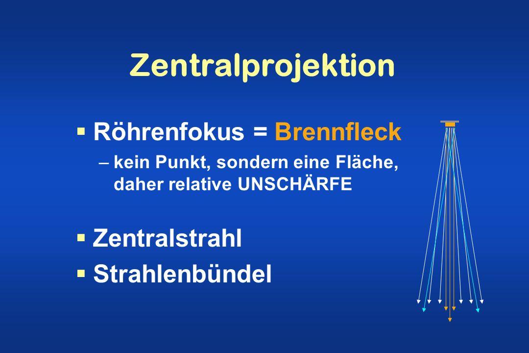 Zentralprojektion Röhrenfokus = Brennfleck Zentralstrahl
