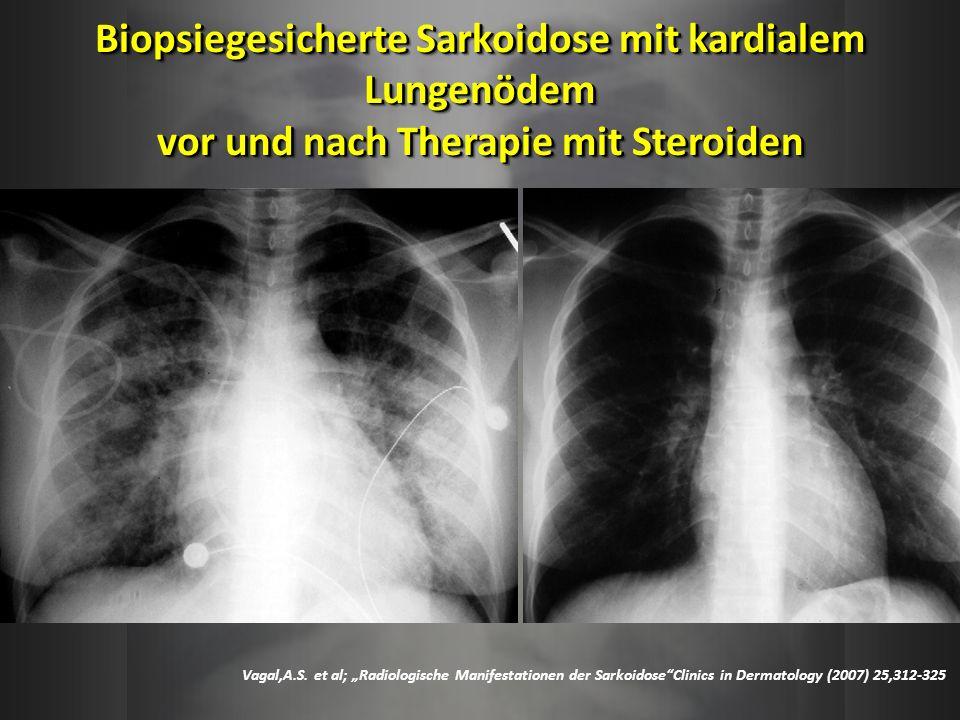 Biopsiegesicherte Sarkoidose mit kardialem Lungenödem vor und nach Therapie mit Steroiden