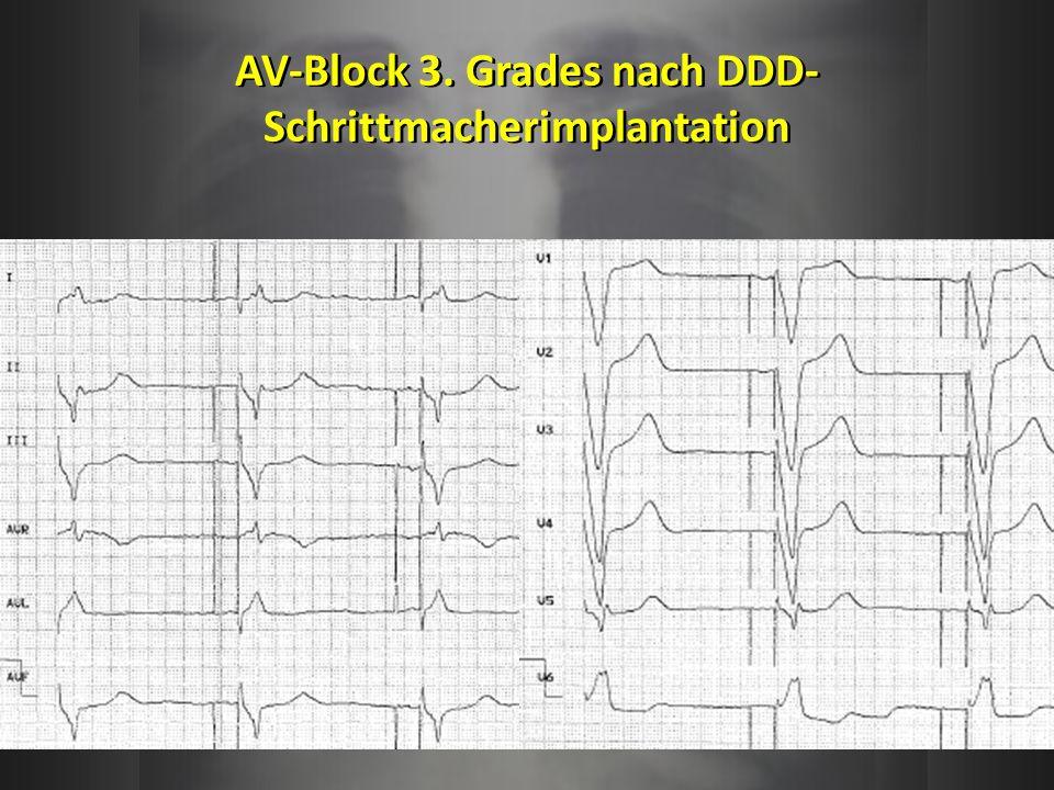 AV-Block 3. Grades nach DDD-Schrittmacherimplantation