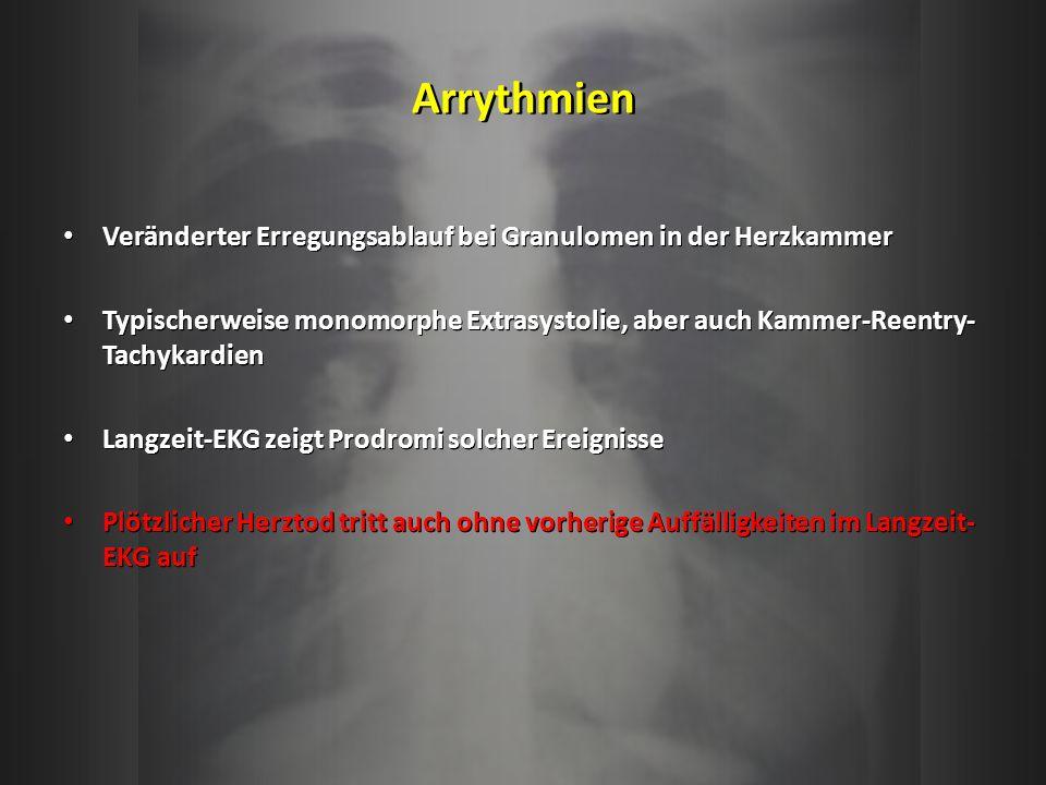 Arrythmien Veränderter Erregungsablauf bei Granulomen in der Herzkammer.