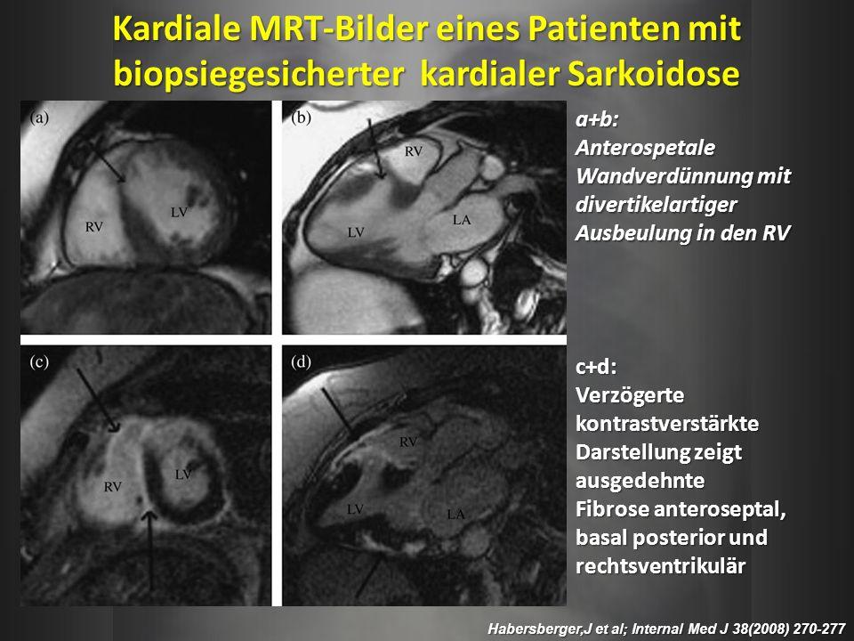 Kardiale MRT-Bilder eines Patienten mit