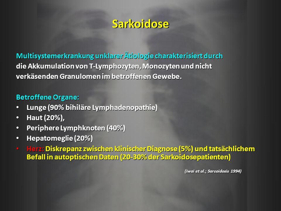 Sarkoidose Multisystemerkrankung unklarer Ätiologie charakterisiert durch. die Akkumulation von T-Lymphozyten, Monozyten und nicht.