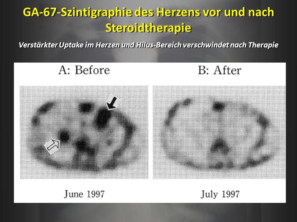 GA-67-Szintigraphie des Herzens vor und nach Steroidtherapie Verstärkter Uptake im Herzen und Hilus-Bereich verschwindet nach Therapie