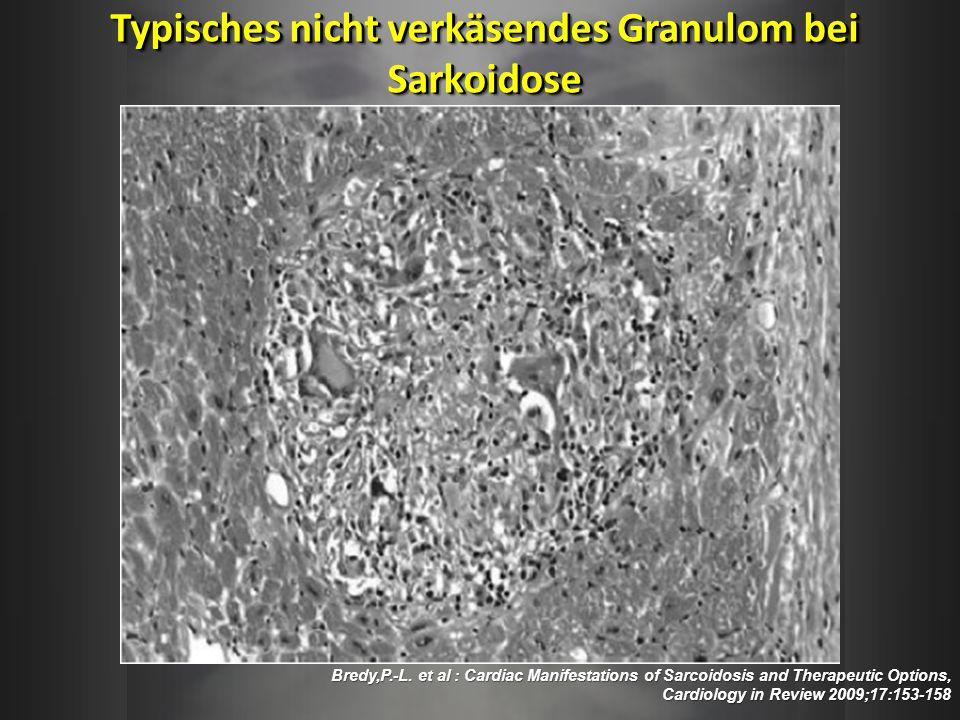 Typisches nicht verkäsendes Granulom bei Sarkoidose