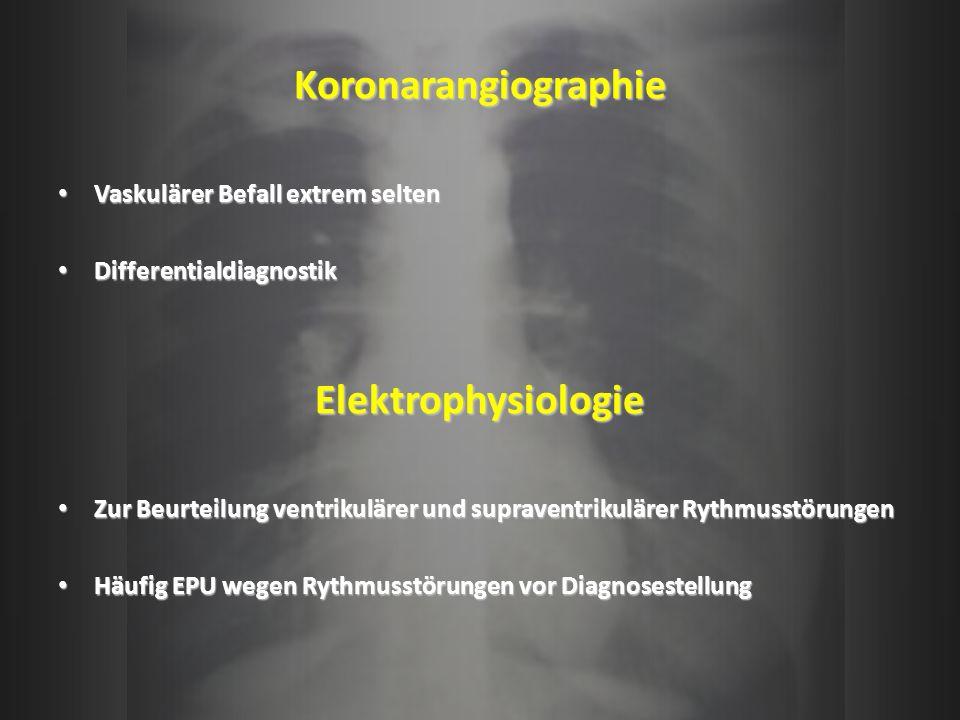 Koronarangiographie Elektrophysiologie