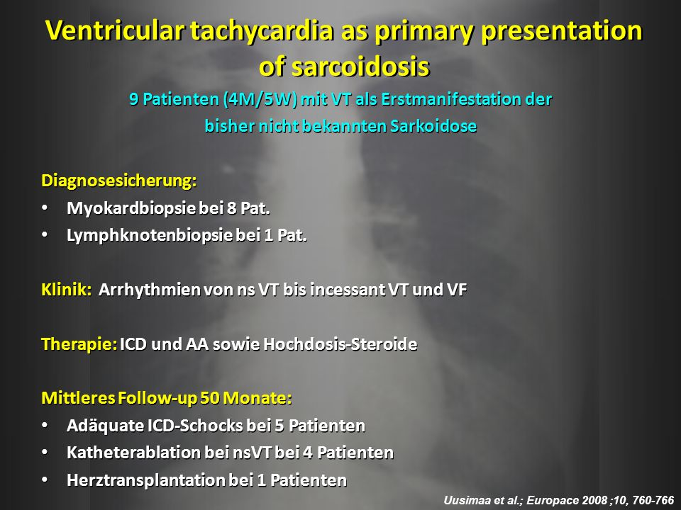 Ventricular tachycardia as primary presentation of sarcoidosis