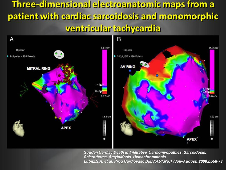Three-dimensional electroanatomic maps from a patient with cardiac sarcoidosis and monomorphic ventricular tachycardia