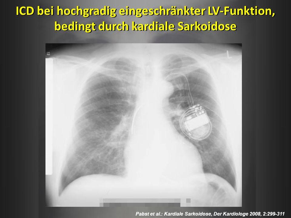 ICD bei hochgradig eingeschränkter LV-Funktion, bedingt durch kardiale Sarkoidose
