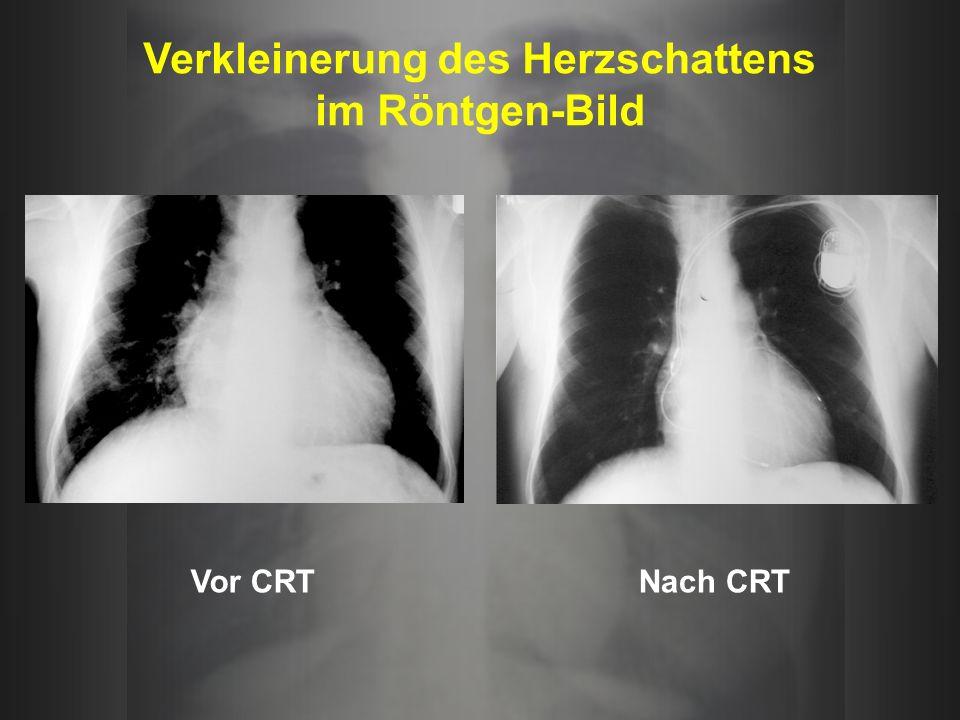 Verkleinerung des Herzschattens im Röntgen-Bild