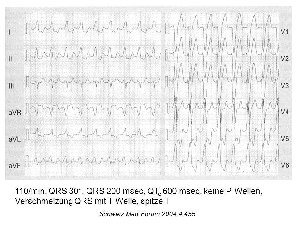 110/min, QRS 30°, QRS 200 msec, QTc 600 msec, keine P-Wellen, Verschmelzung QRS mit T-Welle, spitze T