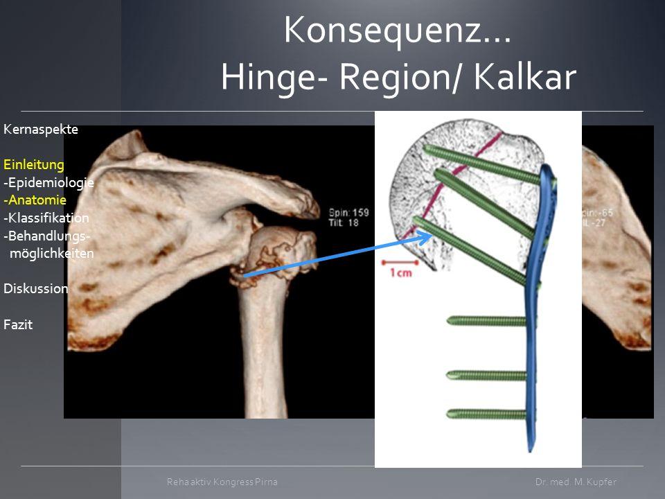 Konsequenz... Hinge- Region/ Kalkar